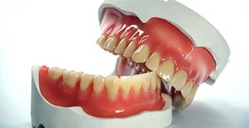 dental-prosthetics
