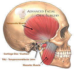 temporomandi-bular-joint-disorders